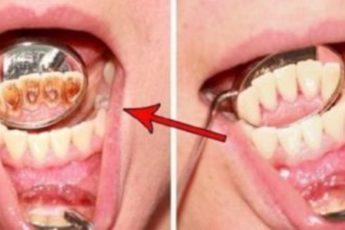 Одна столовая ложка натощак, 10 минут… Не верю, что еще год назад зубы были моим проклятием!