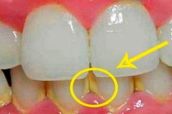Вот как удалить зубной налет за 5 минут без похода к стоматологу!