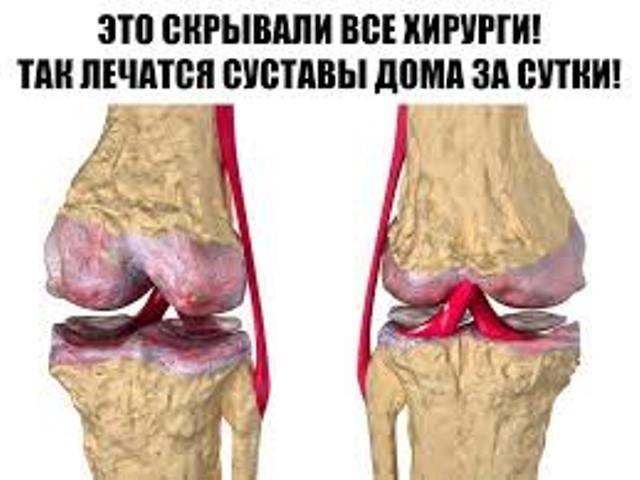 eto-skryvali-vse-hirurgi-tak-lechatsya-sustavy-doma-za-sutki-eta-mikstura-skoraya-pomosch-ot-boli-v-sustavah-1-6255362