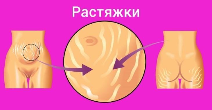 kuda-delis-rastyazhki-kopeechnoe-sredstvo-iz-apteki-sdelalo-kozhu-bozhestvennoy-2-7172529